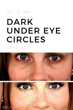 #angelalantermakeup #makeuptutorial #darkcircles #eyesmakeup #tutorial #gorgeous #circles #conceal #angela #lanter #cove... Under Eye Makeup, Dark Under Eye, Eye Circles, Angela, Tutorial, Eyes, Dark Spots Under Eyes, Periorbital Dark Circles, Dark Circle