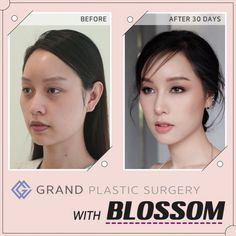Have a consultation and meet the cosmetic surgeon ahead of time. Make certain that you feel comfy with them and that your health and wellbeing and safety is a leading concern. Eye Bag Surgery, Dermatologist Skin Care, Korean Plastic Surgery, Beauty Clinic, Operation, Promotional Design, Asian Makeup, How Are You Feeling, Gingham