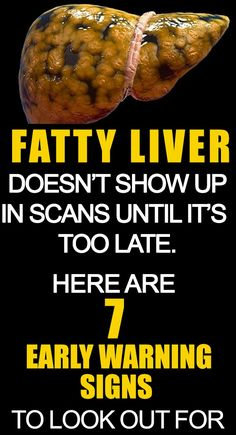 7 FATTY LIVER SIGNS TO WATCH OUT FOR & HOW TO TREAT IT Here ar seven liver disease signs to observe out for and the way to treat it reception victimization free home remedies that employment. a typical liver disorder found in most of the people is live… Fatty Liver Diet, Healthy Liver, Fatty Liver Symptoms, Disease Symptoms, Foods For Liver Health, Fatty Liver Remedies, Liver Disease Diet, Medical Symptoms, Healthy Man