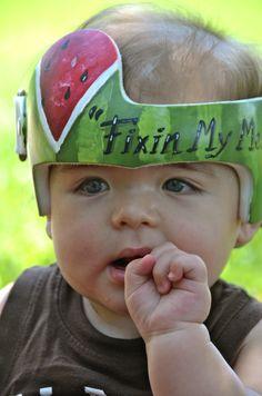 Baby Helmet, Helmet Hair, Doc Band Wraps, Plagiocephaly Helmets, Trials And Tribulations, Helmet Design, Everything Baby, Baby Bumps, My Baby Girl