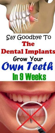 Incredible Discovery: Say Goodbye To The Dental Implants, Grow Your Own Teeth In 9 Weeks #teeth #health #beauty #bone #dental #remedies