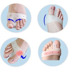 Hot Sell Good Quality2 Pcs Silicone Toe Hallux Valgus Separator Straightener Bunion Relief Soft Pads
