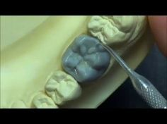 Live wax up - Lower 1st premolar (occlusion) - YouTube
