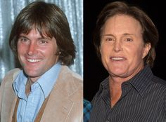 Bruce Jenner was so good looking....Pre-Kardashian. (from Celebs Who've Admitted to Getting Plastic Surgery   E! Online)