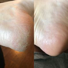 Results from Epoch Sole solution by NuSkin! Let me know if you would like to order :) Epoch Sole Solution, Pedicure, Hair Beauty, Skin Care, Nu Skin, Galvan, Parlour, Pearls, Health And Wellness