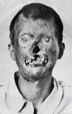 Leprosy patient, 1918.
