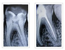 We are the most preferred dental clinics in Pune and the root canal treatment cost will definitely not burn a hole in your pocket. A properly done root canal with a cap can last for a lifetime and we are the experts of root canal treatment in Pune city and Pimpri Chinchwad.