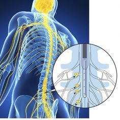 Organic Ion Transistor Blocks Pain Signals From Reaching The Brain | A new type of medical device could one day put the minds of chronic pain sufferers at ease by distributing the body's own natural pain relief signals at just the right time.