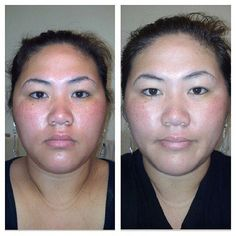 Before & After - after only 1 day.  Lumiere de Vie works.  For best results, use for 6-8 weeks.  www.BigDealShops.com  #skin #skincare #treatment #smooth #healthy #lumiere #before #after #ridinger #lorenridinger