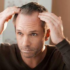 Haartransplantation kosten für Krankenkasse