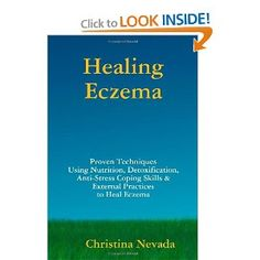 Healing Eczema by Christina Nevada