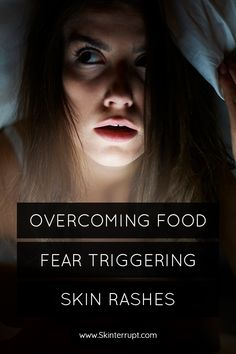 food fear is very real (and awful). Learn some practical steps to start walking yourself out of this food restriction hole! Eczema Psoriasis, Skin Rash, Walking, This Or That Questions, Food, Essen, Walks, Yemek