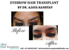 Eyebrow Hair Transplant, Hair Transplant Surgery, Hair Restoration, Delhi India, Hair Loss Treatment, Moustache, Eyebrows, Meet, American