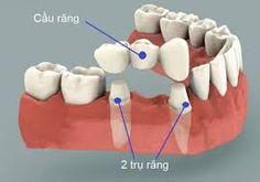Làm cầu răng có tốt không? - BỌC RĂNG SỨ THẨM MỸ 360
