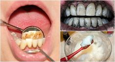 Today, we're going to show you some home treatments to help remove unpleasant-looking tartar from your teeth and improve your overall dental health! Natural Treatments, Natural Remedies, Plaque Removal, Home Treatment, Oral Hygiene, Natural Solutions, Dental Health, Cookies Et Biscuits, Natural Medicine