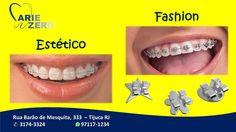 Ortodontia diferente, jovem e moderna? Venha conhecer os nossos APARELHOS ESTÉTICOS E FASHION. Ligue 3174-3324 ou 97117-1234 whatsapp e agende a sua consulta.