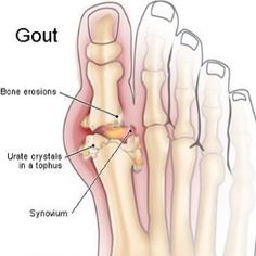 Foods To Avoid For Gout Sufferers