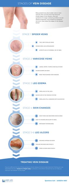 Stages of #vein disease Varicose Veins, Spider, Spiders