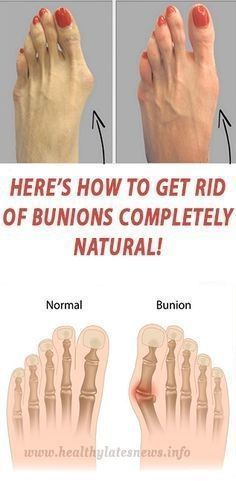 Here's How to get rid of Bunions completely natural