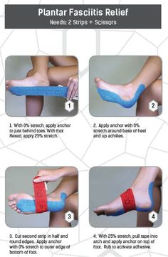 Reducing the pain that comes with plantar fasciitis is as easy as applying two…
