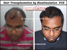 FUE(follicular unit extraction) is the latest hair transplantation technique with fewer risks.DermaClinix offers FUE Hair Transplant Clinic in Delhi. We are having trained team of doctors from AIIMS, Safdarjung  Hospital (Delhi), PGI(Chandigarh) with latest equipment and technology.