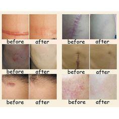 Nuobisong Cicatriz Facial Tratamiento de Eliminación de Manchas Faciales Cremas Para Blanquear La Cara Crema de Estrías hidratante