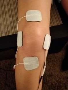 arthritis knee pain remedies, types of treatments and methods to reduce knee discomfort or treatment towards knee arthritis Knee Arthritis, Rheumatoid Arthritis, Knee Osteoarthritis, Tens Unit Placement, Knee Surgery Recovery, Acl Surgery, Fracture Healing, K Tape, Physical Therapy