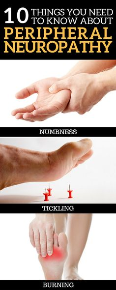 Here are 10 things you absolutely need to know about Peripheral Neuropathy
