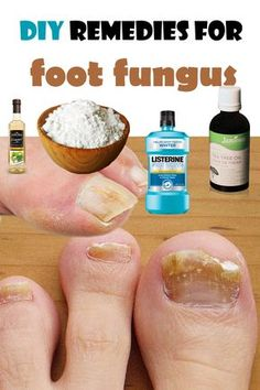 Two types of fungi are affecting the feet. One is the toes fungus and the other is the athlete's foot, a fungus that affects the skin, usually around the toes. Both can be treated with prescr…