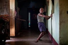 Ten-year-old Sanjay Gope moved normally as a toddler until seizures began to wring the life from his arms and legs. When there is no family member around to assist him in walking, he is