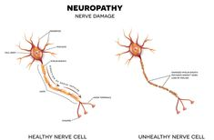 Essential Oils For Neuropathy: Everything You Need To Know For Neuropathic Pain Treatment Essential Oil Benefits Peripheral Neuropathy, Nerve Fiber, Nerve Pain, Massage Benefits, Oil Benefits, Health Benefits, Cannabis, Ganja