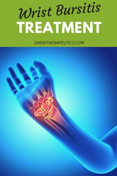Wrist Bursitis Treatment - If there is no swelling or inflammation, massage with Chronic Sinew Liniment to relieve pain and stiffness, strongly stimulate circulation and blood flow to damaged tissues, and promote the healing of overstretched tendons and ligaments. Learn more at SinewTherapeutics.com