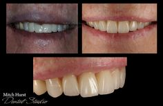 smile makeover, before and after, dental, cosmetic, beautiful, hurstdentalstudio.com