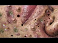 Satifying videos for Relaxation 2021 #324 - YouTube Deep Blackheads, Pimples, The Creator, Videos, Youtube, Homemade Biscuits, Youtubers, Youtube Movies