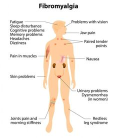 Fibromyalgia is known for painful tender points throughout the body. These tender points are often confused with trigger points, but this article clearly explains what these tender points are. Natural Cures For Fibromyalgia, Essential Oils For Fibromyalgia, What Is Fibromyalgia, Treating Fibromyalgia, Fibromyalgia Treatment, Fibromyalgia Trigger Points, Fibromyalgia Medication, Fatigue Causes, Chronic Fatigue Syndrome Diet