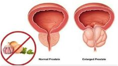 9 USEFUL NATURAL REMEDIES FOR ENLARGED PROSTATE – SHRINK THE PROSTATE IN A PAINLESS WAY #Myprostate