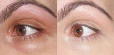 Use bicarbonato debaixo dos olhos para tirar olheiras 1
