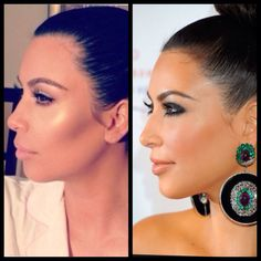 Kim Kardashian 2nd nose job plus lip injection & facial contouring with cheek filler