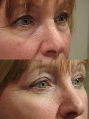 Employ These Facial Aerobics Treatments For Stemming And Raising Flabby Cheeks To Appear Decades Younger