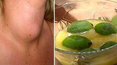 Doctors Will Never Tell You This: Here`s How To Cure Your Thyroid Gland With Just One Ingredient! http://www.healthyfitlifetime.com/healthy/doctors-will-never-tell-heres-cure-thyroid-gland-just-one-ingredient-2/