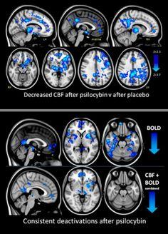Imagens mostram como as drogas afetam o seu cérebro! Veja o estrago que ela faz!