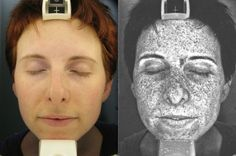 Sun Damage, Brown Spots, Discoloration from medications or pregnancy mask? YOU can lighten to remove the spots!  Check out Rodan + Fields REVERSE Regimen. This image shows the sun damage from years of not protecting her skin. (special light used) Visit my website for product details:mwildt.myrandf.com or email me: meredith1109@gmail.com- Meredith Wildt