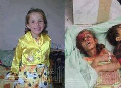 before and after: Syrian Child Raped and Brutalized by Muslims pedophilia.on jihad. These are the animals that Obama and all the democrats  supports  SICK SICK BASTARDS ALL OF THEM.