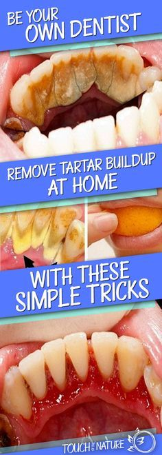 Mineral deposit on teeth is known as tartar. As time passes by, the amount of tartar increases and if you don't take care, it can cause periodontitis. The best way to remove tartar is paying a visi…
