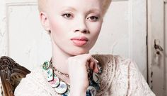 """Thando Hopa """"No one holds a monopoly on the concept of beauty"""" groundup-albinism-MAIN PHOTO"""