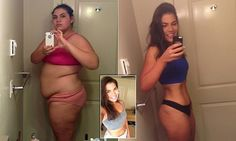 Woman who shed 21st stone says she's often accused of having surgery