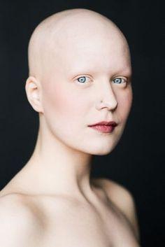 """""""Baldvin"""" es un proyecto fotográfico que se realizó con una asociación en Islandia. (significa fuerza). Se tomaron retratos de siete mujeres que querían crear conciencia acerca de su condición, la alopecia: un trastorno autoinmune que"""