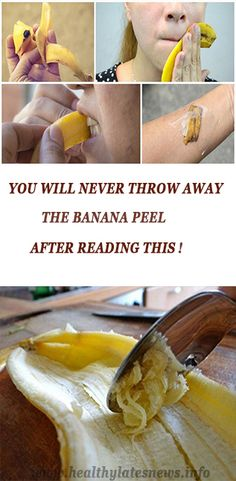 peels are full of nutrients and many vitamins that make your skin healthy. Here's how to use the banana peel for pimples!Banana peels are full of nutrients and many vitamins that make your skin healthy. Here's how to use the banana peel for pimples! Herbal Remedies, Health Remedies, Home Remedies, Natural Remedies, Healthy Tips, Healthy Skin, Healthy Food, Health And Wellness, Health And Beauty
