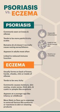 Psoriasis Symptoms & Risk Factors https://www.5-am.co/eczema-psoriasis-cream/ #PsoriasisHair