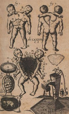 "Anatomical illustration by Jan Luyken and Jan Claesz ten Hoorn from ""Collectanea medico-physica"" by Steven Blankaart digitized by the Rijksmuseum Medical Drawings, Medical Art, Medical Illustrations, Art Illustrations, Anatomy Art, Anatomy Drawing, Talking Tom 2, Human Oddities, Arte Obscura"